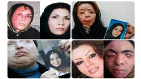 'Bad hijab' Prompts Acid Attacks On Women inIran