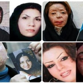 'Bad hijab' Prompts Acid Attacks On Women in Iran