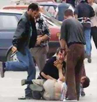 Kosovo - Serb beaten by Albanians in the street