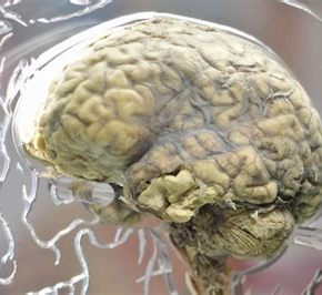 Scientist sounds alarm: COVID vaccines producing symptoms of Parkinson's, other neurodegenerative disorders